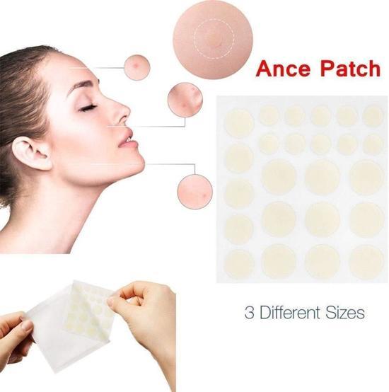 acne pleisters