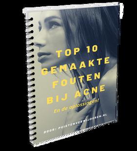 top 10 gemaakte fouten bij acne