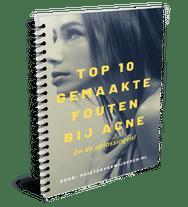 gratis boek over acne